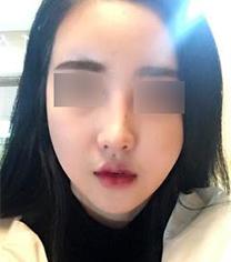 韩国nano混血鼻修复超惊艳真人案例对比_术前