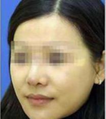 九江协和医疗整形医院鼻综合手术对比案例_术后