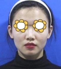 南京韩辰整形医院玻尿酸隆鼻前后对比照片_术前