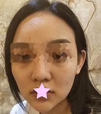 包头华美整形医院鼻整形+面部脂肪填充手术案例_术前