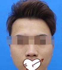 包头华美整形医院肋软骨隆鼻手术案例_术前