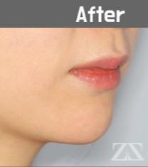 韩国zestar整形外科假体植入垫下巴恢复日记_术后