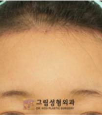 韩国格林整形医院发际线种植手术案例_术后