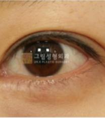 韩国格林整形医院双眼皮手术案例_术后