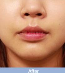 韩国格林整形医院唇部下垂矫正手术案例_术后