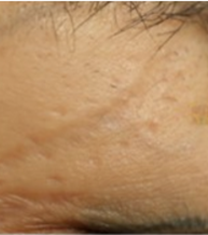 韩国格林整形医院疤痕整形手术对比案例_术前