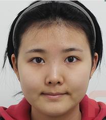 韩国芙莱思整形医院面部吸脂手术对比案例_术前