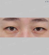 韩国艺雅特整形外科双眼皮真人案例对比
