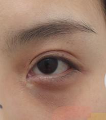 韩国芙莱思整形医院双眼皮修复手术对比案例_术前