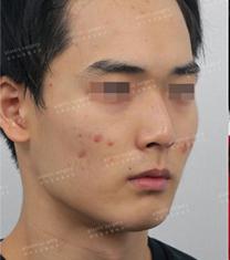 韩国艺雅特男士鼻综合整形案例前后对比_术前