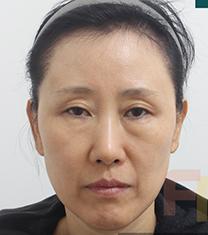 韩国芙莱思整形医院面部埋线提升手术案例_术前