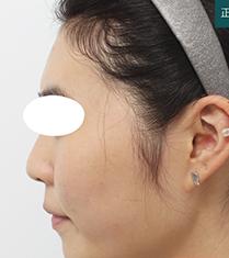 韩国芙莱思整形医院隆鼻手术对比案例_术前