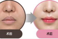 厚唇改薄是永久的吗,可不可以和微笑唇一起做??