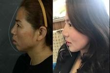 轮廓手术有年龄限制吗,上海首尔丽格朴兴植口碑怎么样?