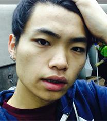 韩国丽偶医院男生鼻整形+面部填充案例对比_术前