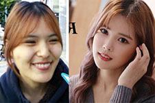 韩国擅长隆鼻手术整形医院中,谁价格低效果好?
