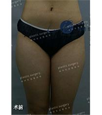 韩国艺雅特吸脂瘦大腿真人案例对比_术前