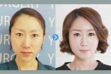 韩国友珍整形做脂肪填充有失败情况吗?效果到底怎么样?