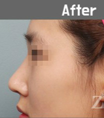 韩国zestar整形外科驼峰鼻矫正真人对比_术后