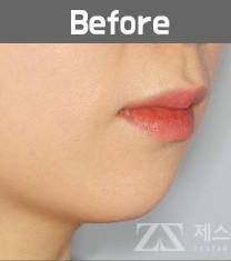 韩国zestar整形外科假体植入垫下巴恢复日记_术前