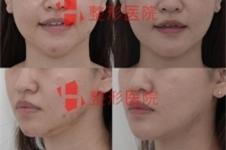白汀桓做下颌角在韩国当地能排第几,修复手术真的强?