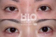 割双眼皮开眼角后遗症多久恢复,韩国什么医院修复厉害?
