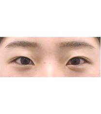 韩国Rio丽偶双眼皮手术真人案例自拍对比_术前