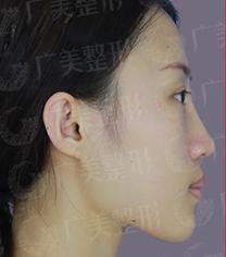 广州广美整形医院鼻部整形手术对比案例