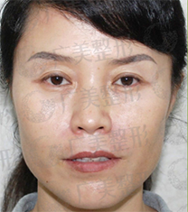 广州广美整形医院埋线提升手术对比案例_术后