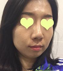 韩国格林整形医院面部脂肪填充手术案例_术前
