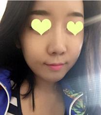 韩国格林整形医院面部脂肪填充手术案例_术后