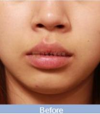 韩国格林整形医院唇部下垂矫正手术案例_术前