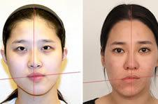 韩国偏颌手术防止越来...