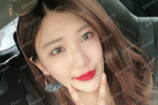 颧骨整形韩国女神外科怎么内推,有危险吗??