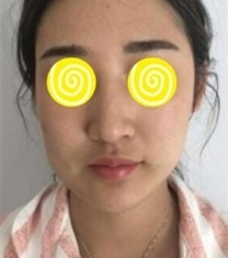北京当代面部脂肪移植填充手术前后照片_术前