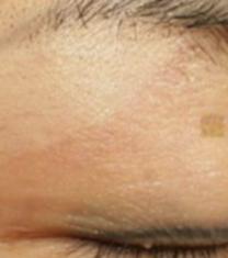 韩国格林整形医院疤痕整形手术对比案例_术后