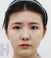 韩国芙莱思整形医院面部吸脂手术对比案例_术后