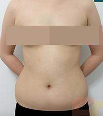 韩国芙莱思整形医院腰腹部吸脂手术对比案例