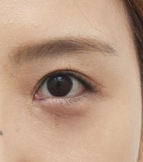 韩国芙莱思整形医院双眼皮修复手术对比案例_术后