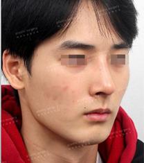 韩国艺雅特男士鼻综合整形案例前后对比_术后