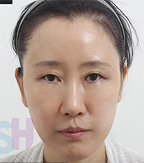 韩国芙莱思整形医院面部埋线提升手术案例_术后