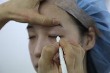 全切修复一只眼韩国怎么手术,收费价格大概多少钱??