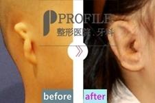 韩国profile医院耳整形中心郑在皓:让小耳症孩子长出新耳朵