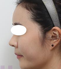 韩国芙莱思整形医院隆鼻手术对比案例_术后
