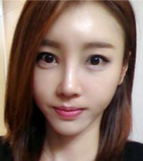 韩国rio丽偶全脸脂肪填充+隆鼻手术真人自拍对比