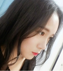 韩国Rio丽偶眼鼻综合+面部填充5个月术后对比_术后