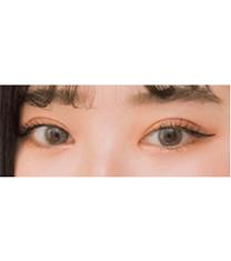 韩国Rio丽偶双眼皮手术真人案例自拍对比_术后