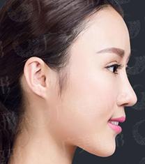 广州广美整形医院鼻部整形手术对比案例_术后