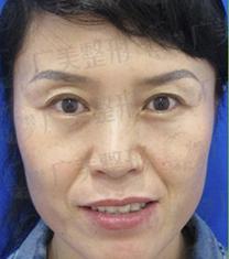 广州广美整形医院埋线提升手术对比案例_术前