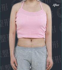 广州广美整形医院吸脂手术对比案例_术后